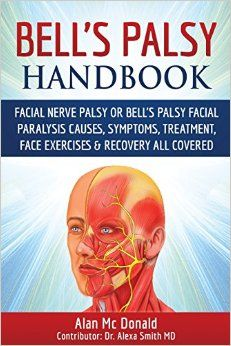 Bell's Palsy Handbook: Facial Nerve Palsy or Bell's Palsy facial paralysis causes, symptoms, treatment, face exercises & recovery all covered by Alan Mc Donald, Dr Alexa Smith (Contributor)