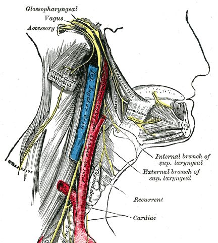 Glossopharyngeal neuralgia is the pain in the distribution of glossopharyngeal nerve distribution and causes repeated episodes of severe pain .
