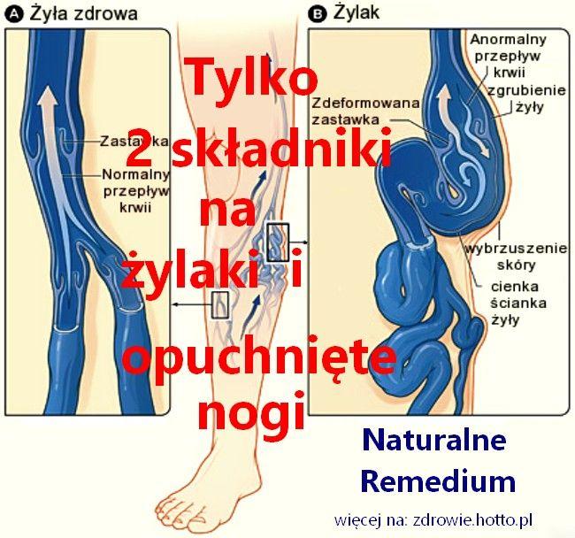 Wystarczą tylko 2 składniki. Naturalne remedium na żylaki i opuchnięte nogi