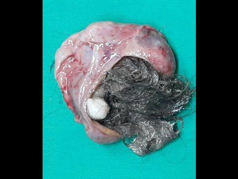 HAIR AND BONE FOUND IN OVARIAN TUMOUR | Ovarian tumor ...