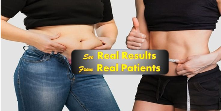 Tummy Tuck Cost in India Contact Cosmetic & Obesity Surgery