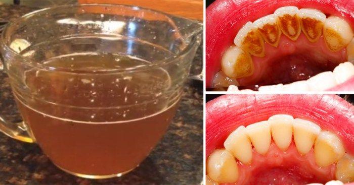 Płyn do płukania jamy ustnej – zielona herbata naturalną alternatywą?