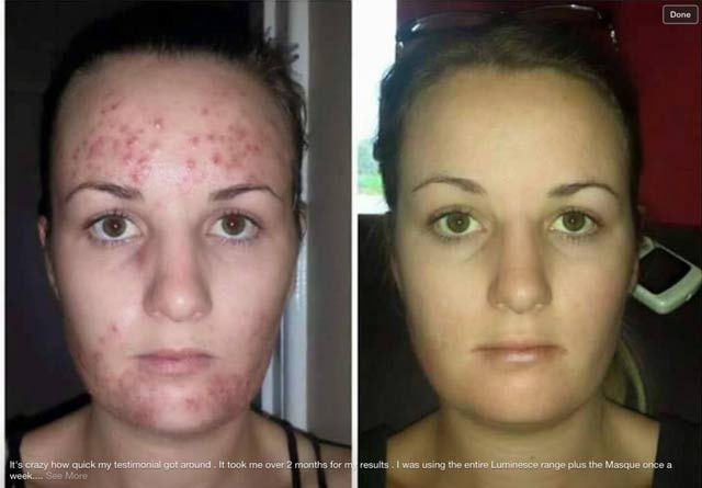 Jeunesse Luminesce Dramatic Skincare Results - http://create-second-earnings.com/wordpress/2015/02/25/jeunesse-luminesce-beforeafter/