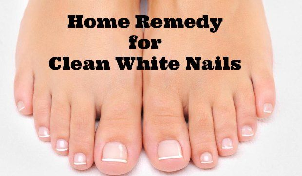 Here's a home remedy for clean white nails that REALLY WORKS! My nails are BEAUTIFUL!!