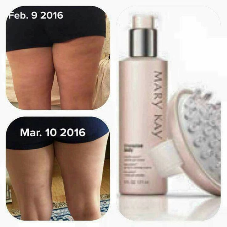 Look at this result after 1 month of using the Cellulite Gel Cream and Body Massage! Amazing stuff! Try yours today! http://www.marykay.com/cneighbor1