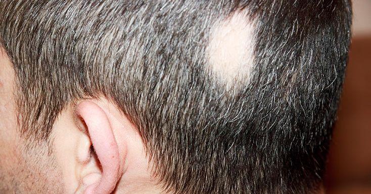 Kreisrunder Haarausfall - nicht nur ein kosmetisches Problem - http://g-m.link/am