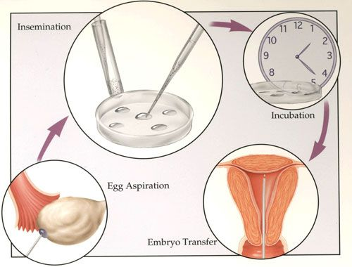 ivf cost in india