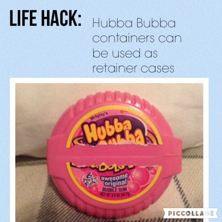 Just got my braces off yesterday and this DIY retainer case is a life saver!!