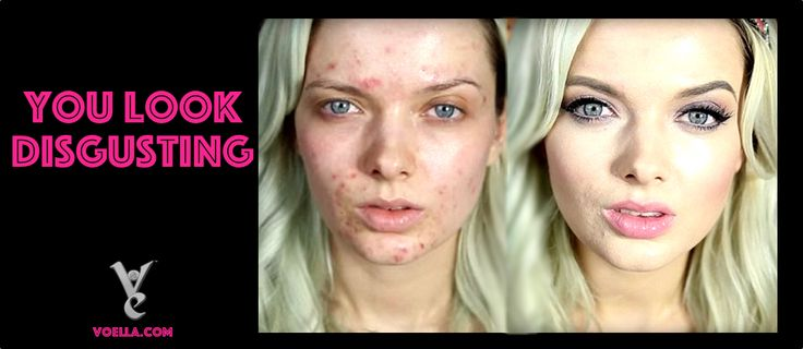You Look Disgusting! Em Ford Bares Her Natural Beauty.