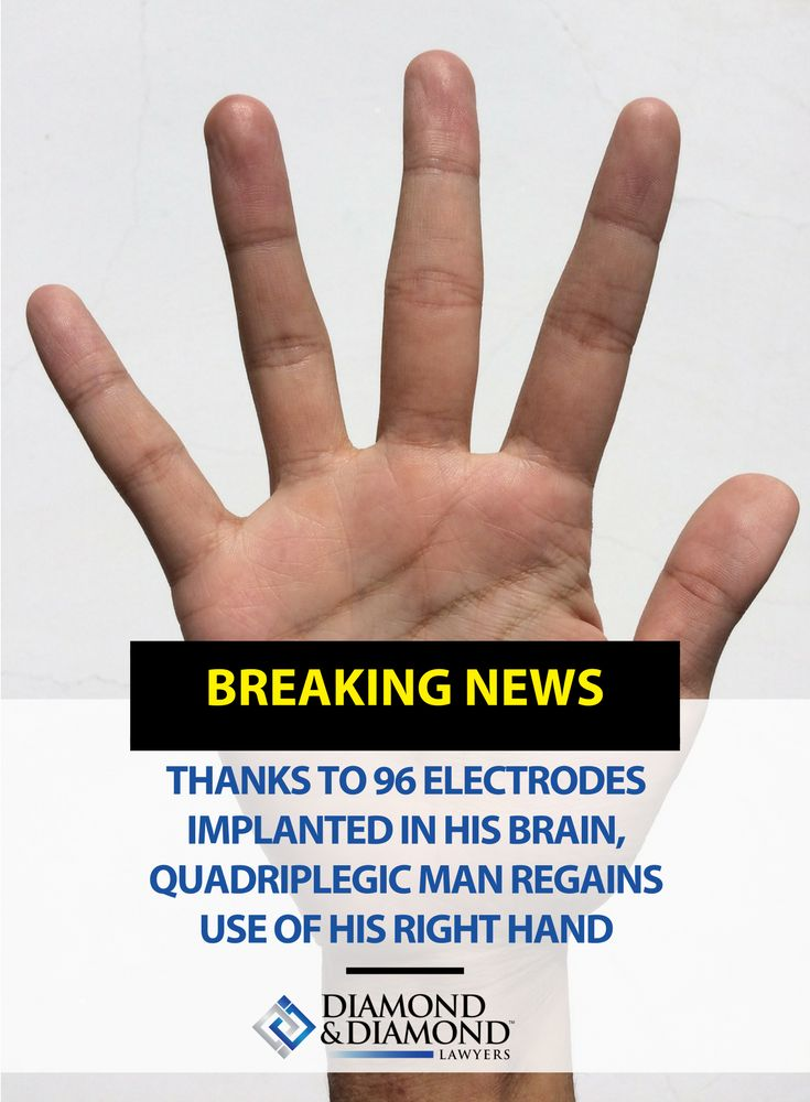 Thanks to 96 electrodes implanted in his brain, quadriplegic man regains use of his right hand. Read more about it by clicking through!