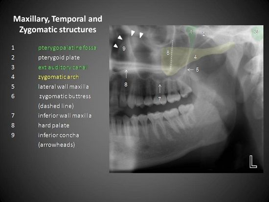 Maxillary, Temporal & Zygomatic Structures in Oral Radiology - Dentaltown Message Board Oral & Maxillofacial Radiology Radiographic Diagnosis http://www.dentaltown.com/MessageBoard/forum.aspx?s=2&f=2661