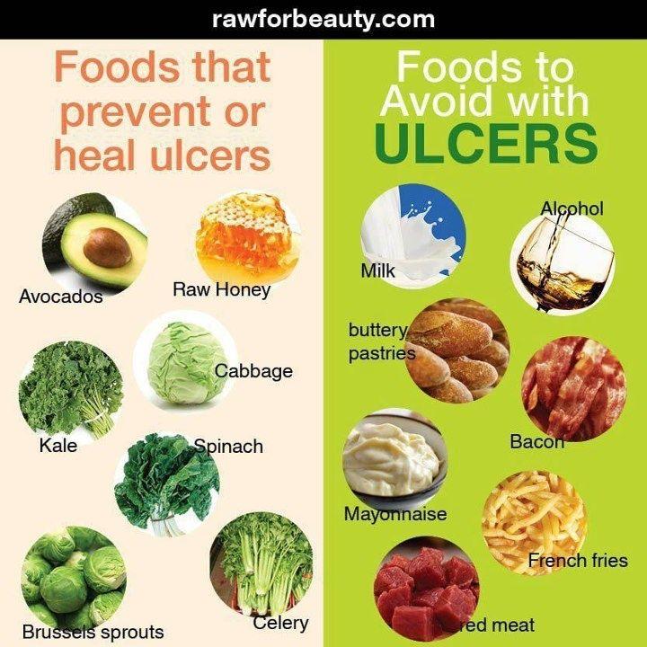 ulcers duodenal symptoms - Google Search