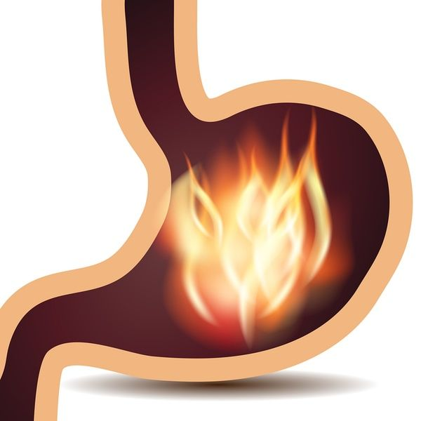 Can Acidic Foods Cause Stomach Ulcers