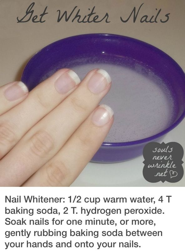 Get white nails!