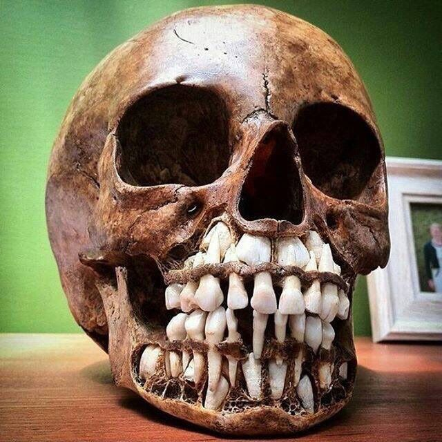 This seems like some @sixpenceee ish right here: A childs skull, it shows their baby teeth with the adult teeth above it. Basically what nightmares are made of.