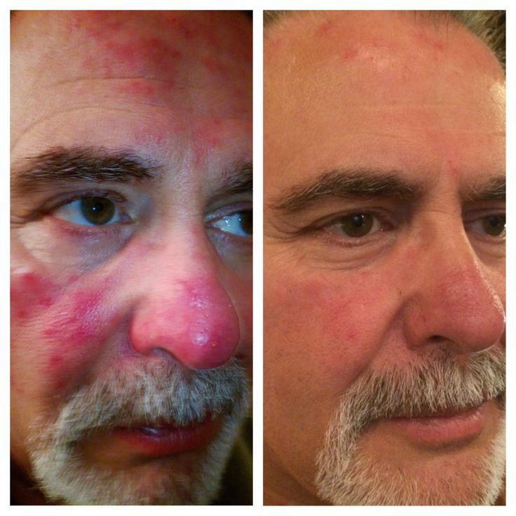 Nerium Before and After. Visit www.qhamilton.nerium.com today for more information!