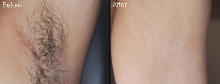 Home hair removal is possible! Have you tried it?