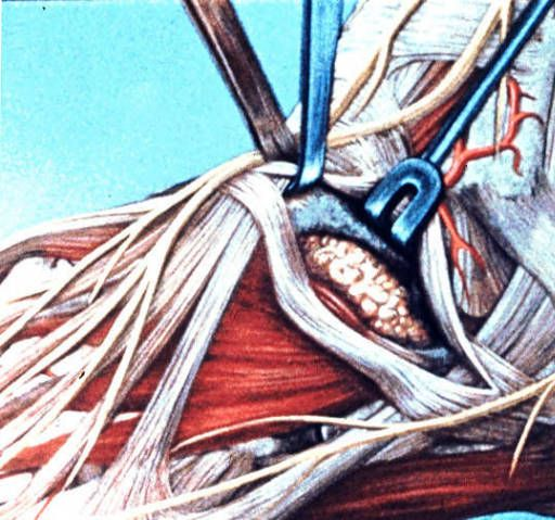 Illustration of dissection of left ankle and foot, anterolateral view, inferior extensor retinaculum split and retracted :: Orthopaedic Surgical Anatomy Teaching Collection