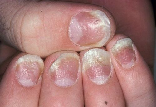15 Disturbing Things Your Nails Reveal About Your Health – Page 8 – Mrs. Weekly ~~Dented or Pitted Nails--signs of aging--psoriasis--psoriatic arthritis
