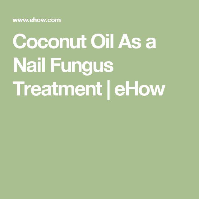 Mejores 1051 imágenes de Nail Fungus Types Of en Pinterest | Hongo ...