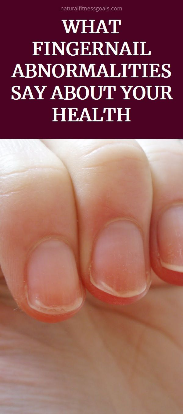 What Fingernail Abnormalities Say About Your Health Nail