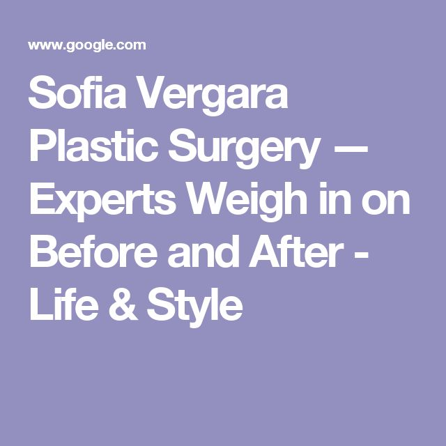 Sofia Vergara Plastic Surgery — Experts Weigh in on Before and After - Life & Style