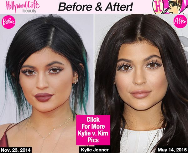 Kylie Jenner's Shocking New Face Makeover: Looks Just Like Kim Kardashian