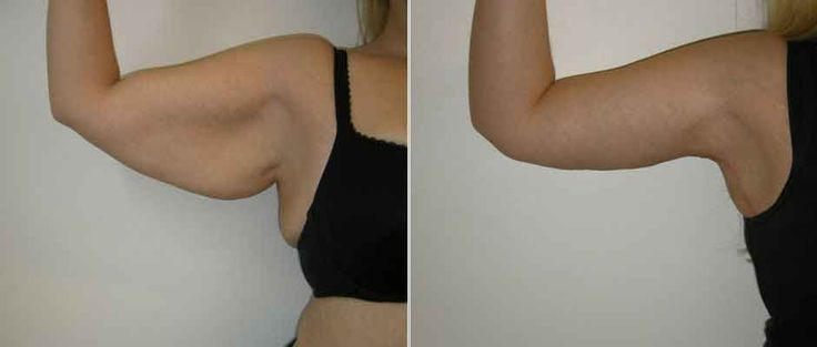 Arm reduction liposuction 5 – Liposuction before and after