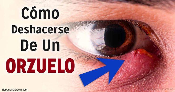 El orzuelo es una típica infección ocular que no es contagiosa, y podría ser atendida exitosamente en el hogar, a través de utilizar estrategias sencillas. http://articulos.mercola.com/sitios/articulos/archivo/2017/07/05/como-eliminar-un-orzuelo.aspx?utm_source=espanl&utm_medium=email&utm_content=art2&utm_campaign=20170705&et_cid=DM149798&et_rid=2069342338