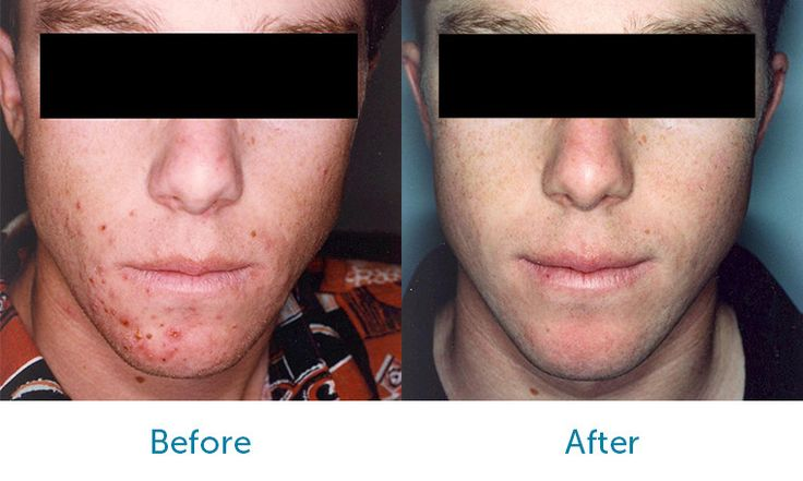 Acne - Patient MB Before & After Treatment