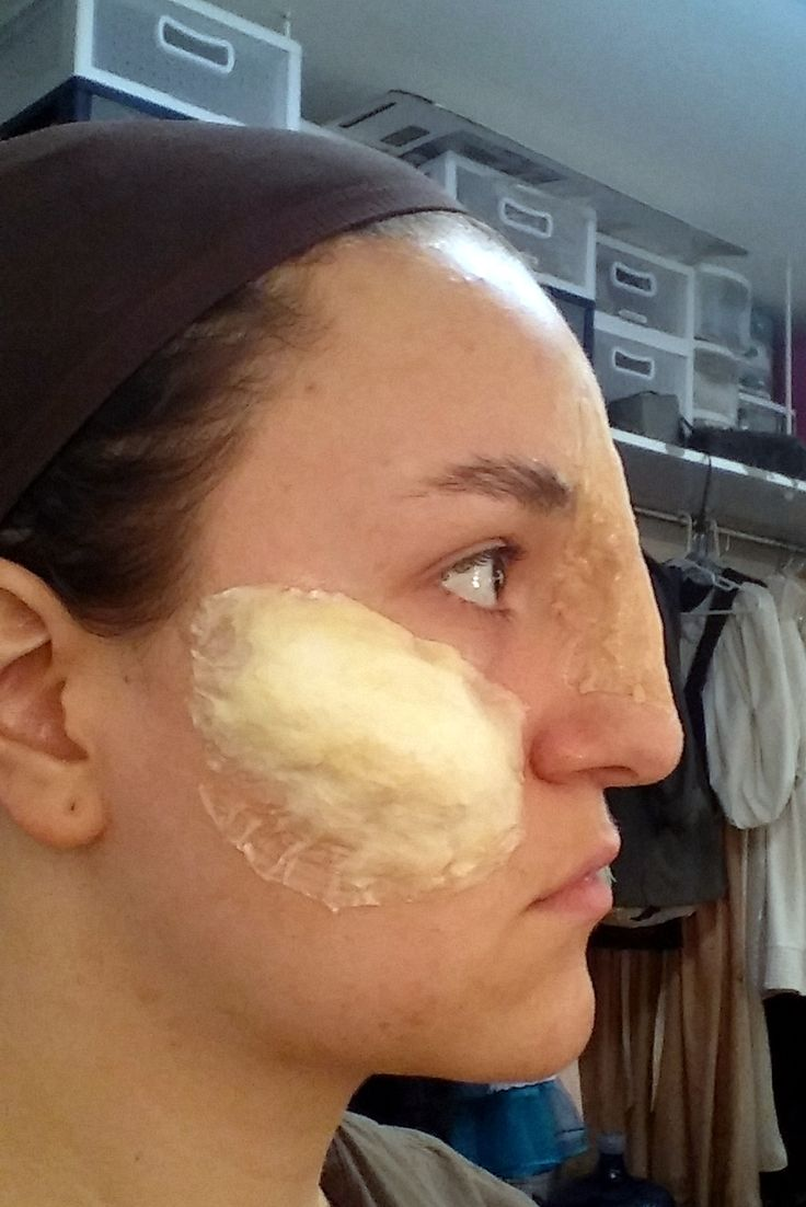 Cotton latex build up on cheek bones and broken nose wax build up on nose