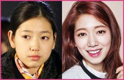 Korean Plastic Surgery Famous People Celebrity Amp Photos