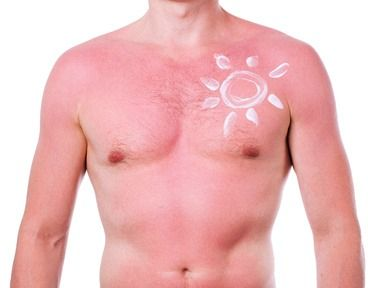 QUESTION: What is the best natural or home remedy for sunburn? I accidentally got really burnt and am now suffering badly because of it. Please help!