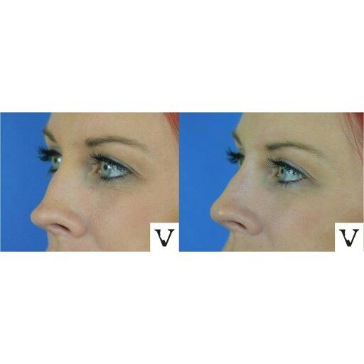 Little tweak to soften the lines of the nose is in order for another stunning patient of mine, non-surgical rhinoplasty is our specialty #boston #rhinoplasty #nosejob #alternative #injection #expert #newton #asymmetry #correction #reconstruction #hiv #lips #eyes #beauty #taste #youth #young #proportion #selfesteem #juvederm #belotero #merz #galderma #allergan #botox #sculptra #chin #augmentation #jaw #reduction #face #slimming #visagesculpture #mashabanar #restylane #radiesse #botox