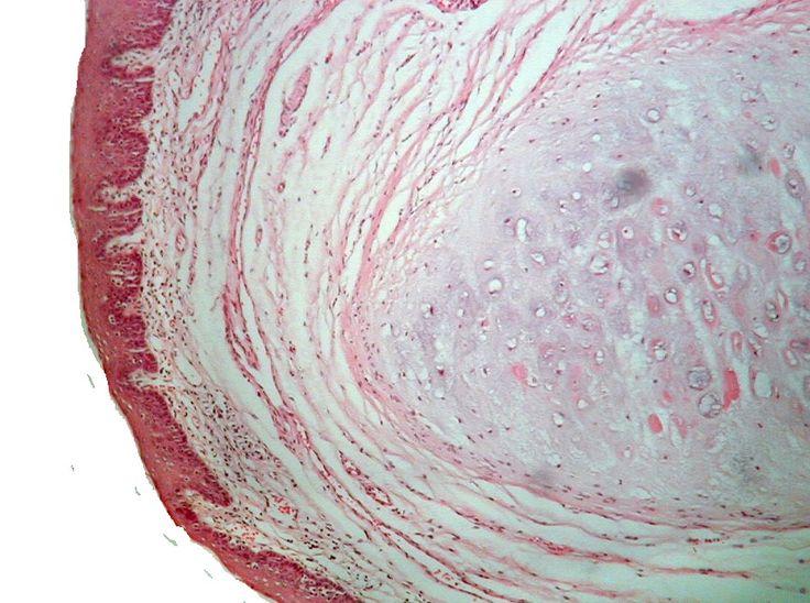 Epiglotis. Se observa que está compuesta de cartílago elástico y cubierta por epitelio plano estratificado en su superficie lingual.  (Epiglottis. It is observed which is composed of elastic cartilage and covered by stratified squamous epithelium in the tongue surface.)