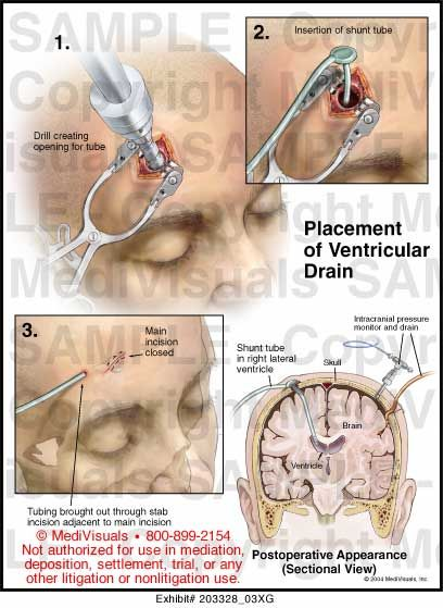 Evd External Ventricular Drain Medicine Pinterest