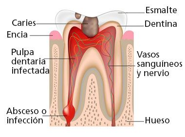 Clinica dental Llobell #periodoncia #implantesdentales #clinicadental