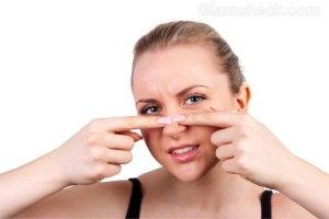 WHAT CAUSES BLACKHEADS AND HOW TO TREAT BLACKHEADS