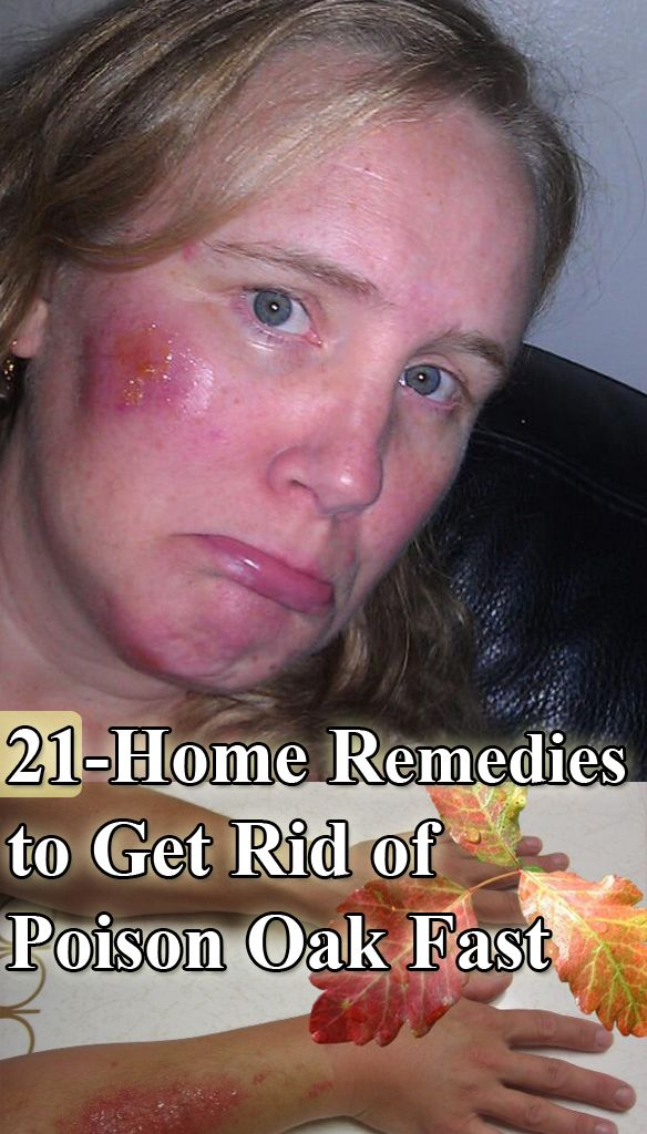21 Home Remedies to Get Rid of Poison Oak Fast : #PoisonOak #PoisonOakRemedies #Herbs #cure #healthcare #Remedies #HomeRemedies #NaturalRemedies #HealthRemedies #health #wellness #healthy #HomeRemedy #HerbalRemedies - > http://www.homeremedyshop.com/21-home-remedies-to-get-rid-of-poison-oak-fast/