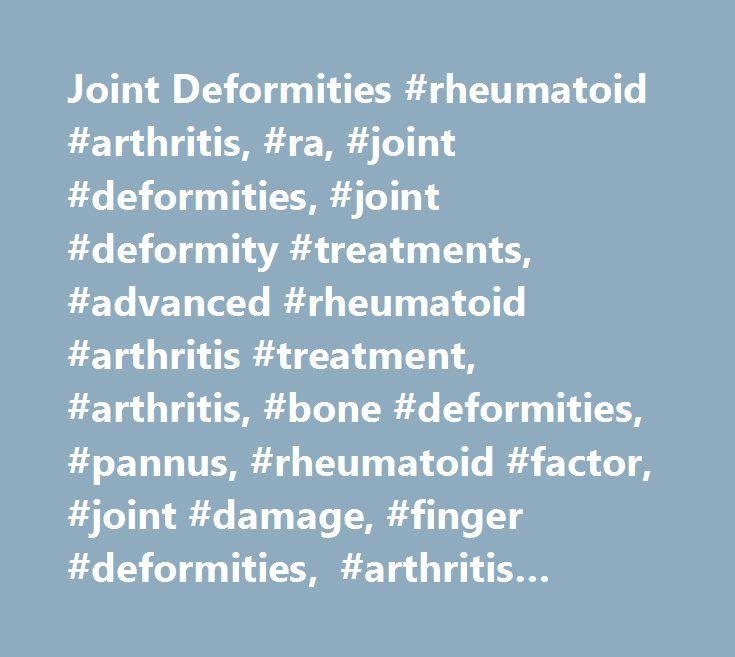 Joint Deformities #rheumatoid #arthritis, #ra, #joint #deformities, #joint #deformity #treatments, #advanced #rheumatoid #arthritis #treatment, #arthritis, #bone #deformities, #pannus, #rheumatoid #factor, #joint #damage, #finger #deformities, #arthritis #today #magazine # http://pharmacy.remmont.com/joint-deformities-rheumatoid-arthritis-ra-joint-deformities-joint-deformity-treatments-advanced-rheumatoid-arthritis-treatment-arthritis-bone-deformities-pannus-rheumatoid-fa/  # Joint…