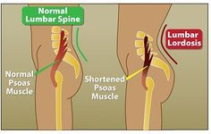 Low Back Pain Could Be a Tight or Shortened Psoas. (pronounced: So-as). The Psoas is a hip flexor located deep in the abdomen attaching the femur to the pelvis and lumbar spine. The lumbosacral nerve plexus runs through it. Prolonged sitting and lack of exercise can shorten the Psoas. When we stand after sitting for a while, the shortened Psoas pulls the lumbar spine forward into increased lordosis (sway back). A stiff, achy or painful low back & sciatic pain is often a result.