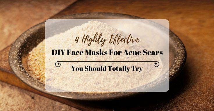 Think a visit to the dermatologist is the only way to rid of pimple marks? Check out these 4 acne scar DIY face masks to clear your skin the natural way.