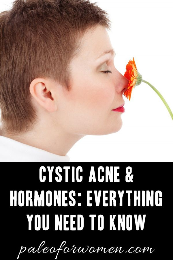 Women suffer from acne at nearly twice the rate of men. Because of hormones. The answer is always hormones. Here's what you need to know about cystic acne.