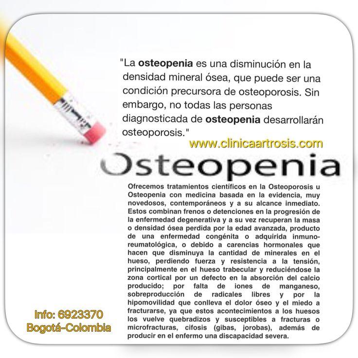La osteoporosis es una patología que afecta a los huesos y está provocada por la disminución del tejido que lo forma, tanto de las proteínas que constituyen su matriz o estructura como de las sales minerales de calcio que contiene.  En la Clínica de Artrosis y Osteoporosis S.A.S. www.clinicaartrosis.com; es una entidad privada ubicada dentro del Centro comercial CENTRO SUBA - Calle 145 No. 91-19  en el SEGUNDO PISO, L10-103 en la ciudad de Bogotá D.C. República de Colombia. PBX: 571…