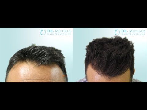 2921 Grafts FUE Hair Transplant unshaven respectively without shaving head/recipient area: for more information visit our website: http://www.hairtransplant-drmichalis.com/real-cases/