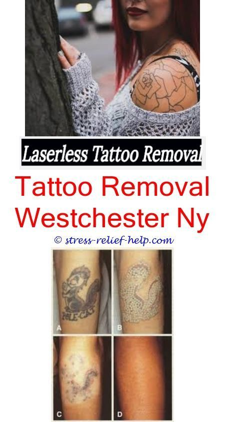 Tattoo removal without laser.What hurts more getting a tattoo or ...