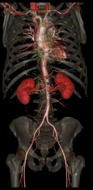Ces images ont l'air d'être des visualisations créées sur ordinateur de différents organes, os et vaisseaux sanguins. En réalité ce sont des images prises grâce à la tomodensitométrie du corps de vrais patients d'un hôpital de Floride qui teste un nouveau scanner médical que General Electric vient de révéler. Les CT-Scan marchent en envoyant un …