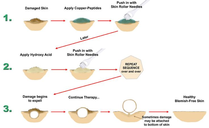Skin Needling with Copper-Peptides