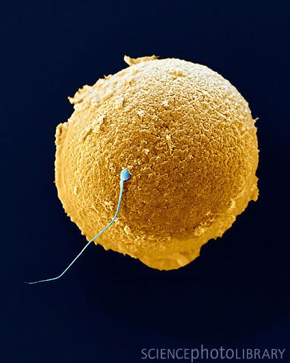 Fertilization. Coloured scanning electron micrograph (SEM) of a sperm (blue) attempting to penetrate a human egg (orange).