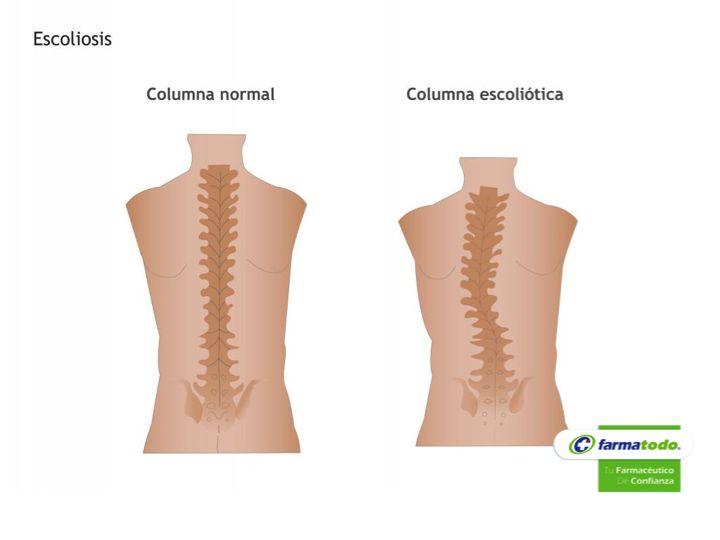 FARMACIA ¿Qué es la escoliosis? Se refiere a un padecimiento en el que se presenta una desviación lateral de más de 10 grados de la columna vertebral. Un 5% de la población presenta curvas de 5 grados de desviación lateral, lo que se considera normal. En realidad, la escoliosis es una deformidad de la columna, en la que hay un desplazamiento lateral de la columna acompañado de rotación de las vértebras y de un desplazamiento en el plano posterior de la columna. www.farmatodo.com.mx